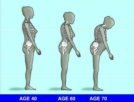 CALCIUM MAGNÉZIUM HATÁSA: csontritkulás, ízületi gyulladások, parkinson-kór ellen.