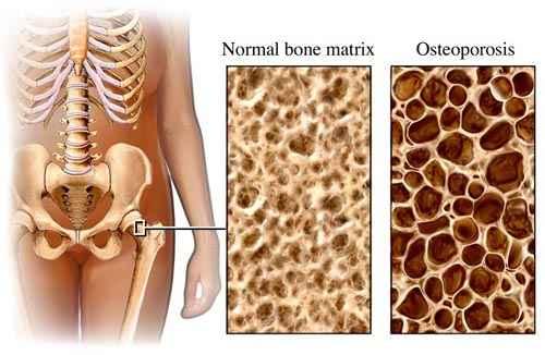 Csontritkulás ellen szerves kalcium